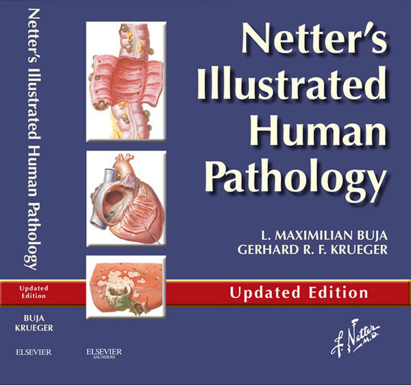 Netter's Illustrated Human Pathology Updated Edition