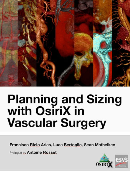 Planning and Sizing with OsiriX in Vascular Surgery