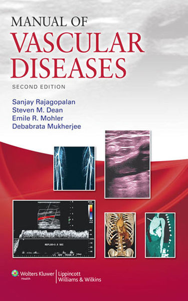 Manual of Vascular Diseases: Second Edition