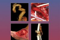 The Evidence for Vascular Surgery, 2nd Edition