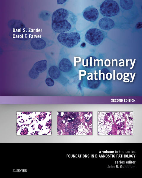 Pulmonary Pathology eBook