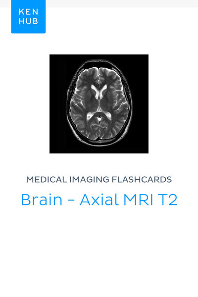 Medical Imaging flashcards: Brain - Axial MRI T2