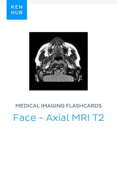 Medical Imaging flashcards: Face - Axial MRI T2