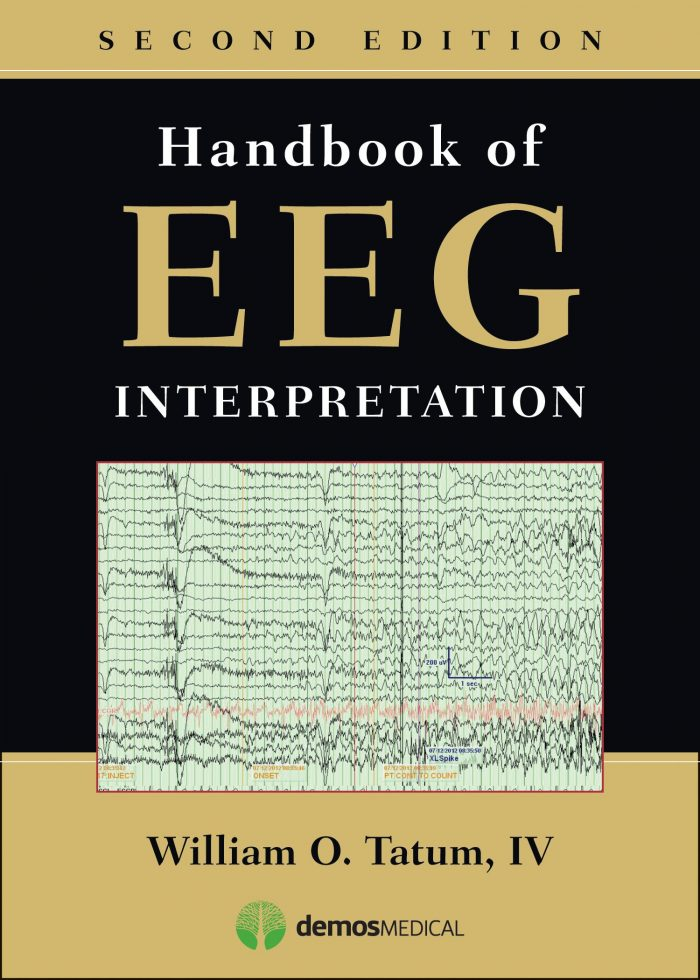 Handbook of EEG Interpretation, Second Edition
